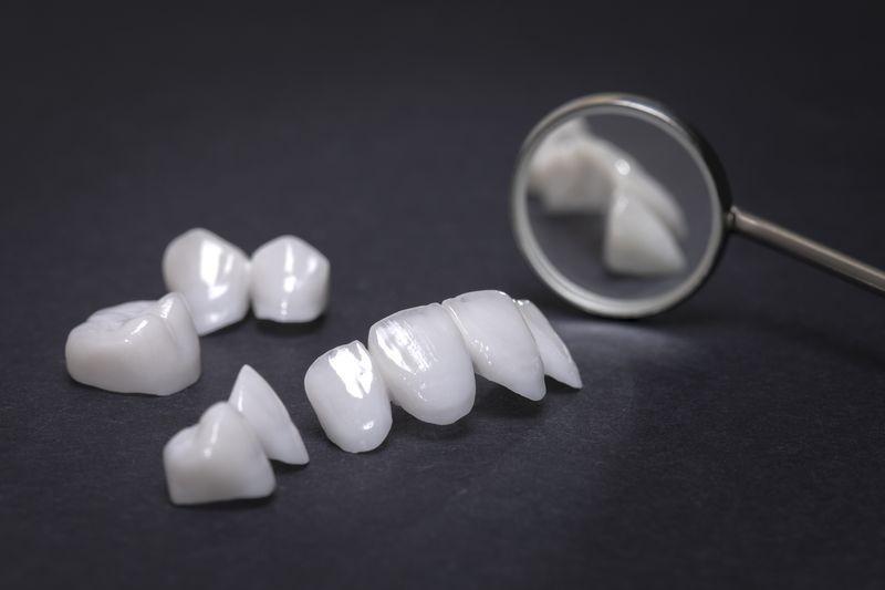 licowe zęby